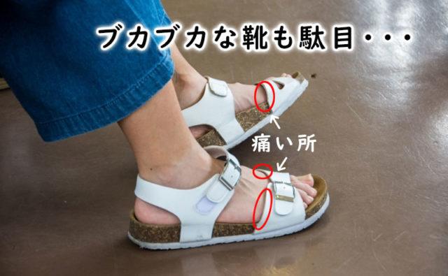 歩くと痛いサンダルの特徴