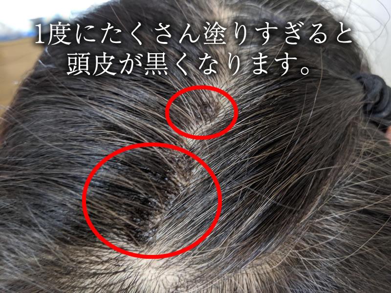 【失敗例】塗りすぎると頭皮が黒くなります